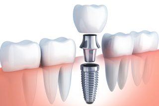 口腔外科(インプラント治療)
